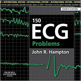 150 Ecg Problems International    Edition