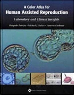 A Color Atlas For Human Assisted Reproduction...