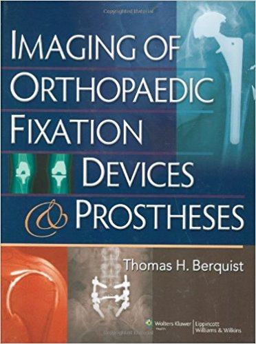 Imaging Of Orthopaedic Fixation Devices & Pro...