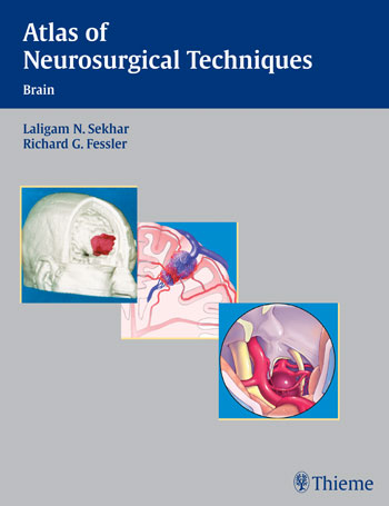 Atlas Of Neurosurgical Techniques Brain