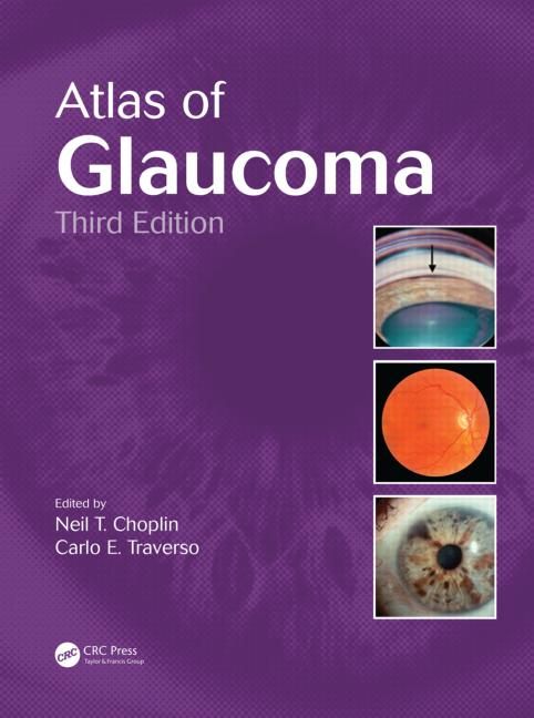 Atlas Of Glaucoma, Third Edition