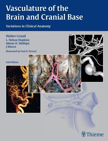 Vasculature Of The Brain And    Cranial Base