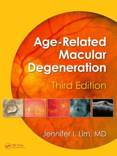 Age-related Macular Degeneration, Third Editi...