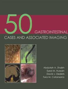50 Gastrointestinal Cases And     Associated ...