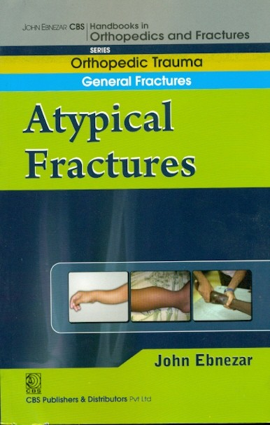 A Typical Fractures (handbook In Orthopedics ...