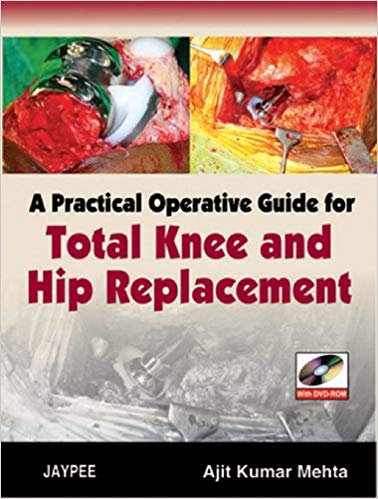 A Practical Operative Guide For Total Knee An...